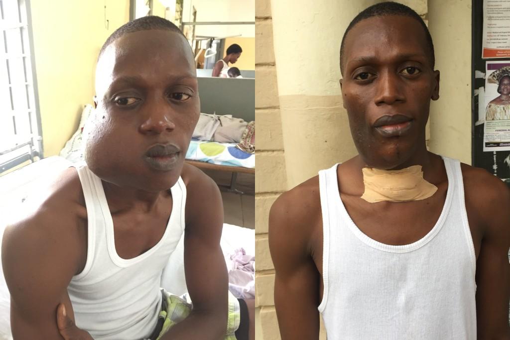Amadu voor zijn operatie (links) en na zijn eerste operatie (rechts)