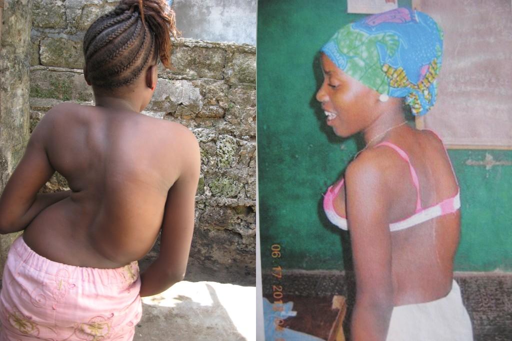 Fati voor haar operatie (links) en na haar operatie (rechts)