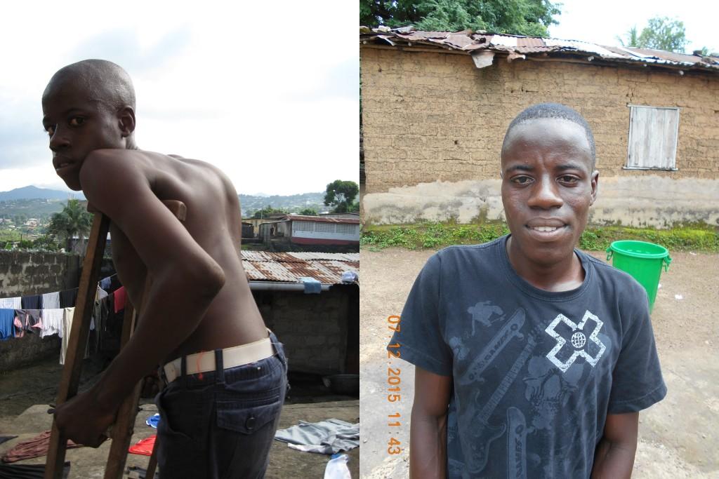 Gbassay Kanu voor zijn operatie (links) en na zijn operatie (rechts)
