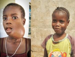 Hassanatu voor (links) en na chemo therapie (rechts)