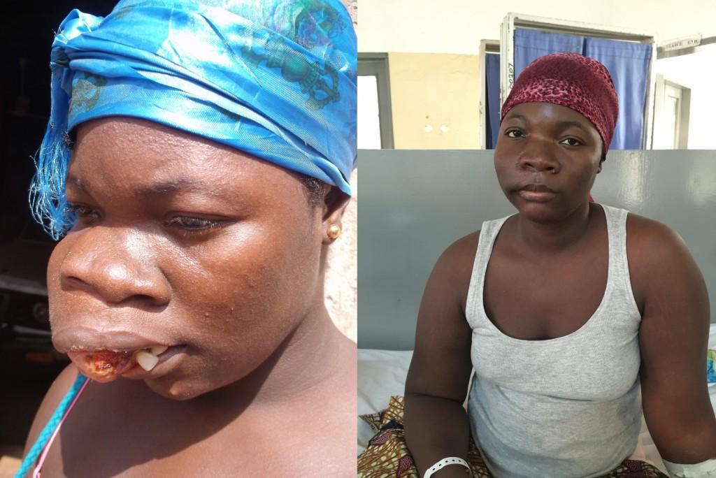 Lovetta voor haar operatie (links) en na het verwijderen van de tumor (rechts)