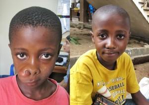 Mohamed voor zijn operatie (links) en na zijn operatie (rechts)
