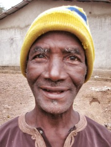 Sidu, age 60. His eyesight was preserved via bilateral Pterygium surgery in February 2012.