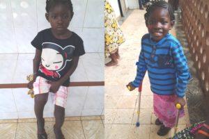 Mariatu met een pijnlijke infectie in haar rechterbeen voor (links) en na haar operatie (rechts)
