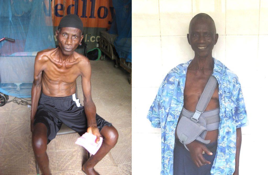 Salifu voor zijn operatie aan zijn gebroken arm (links) en na zijn operatie (rechts)