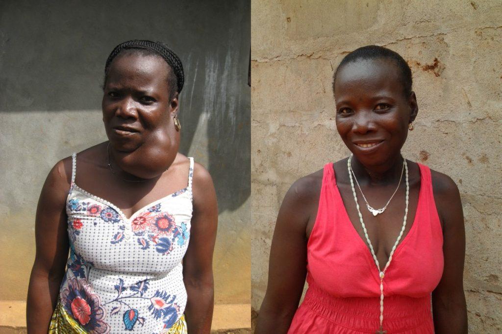 Mateneh voor haar operatie (links) en na de operatie