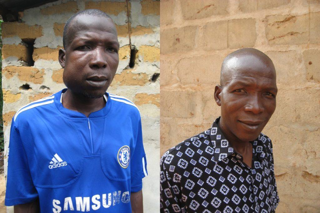 Umaru voor zijn operatie (links) en na zijn operatie