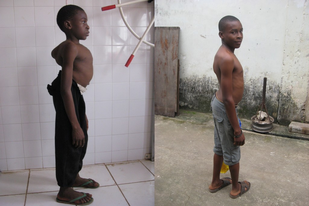 Alpha before the operation (left), his back damaged by a tuberculosis infection, and after the operation (right)