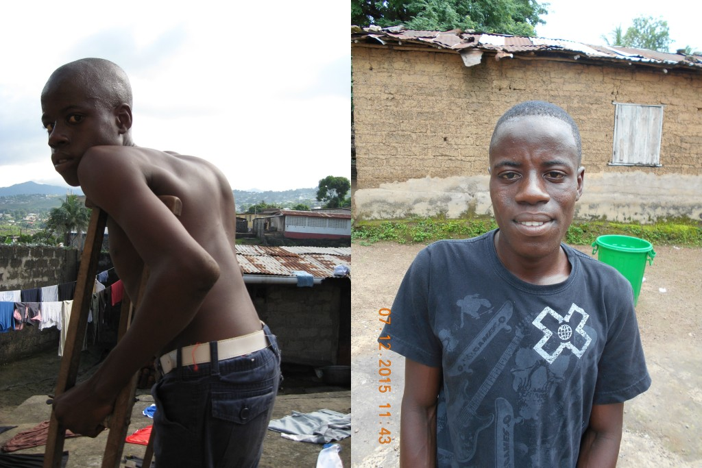 Gbassay before his operation (left) and after his operation (right)