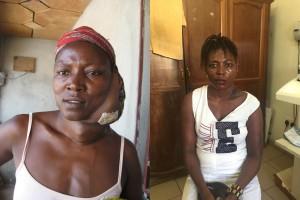 Mamusu voor haar operatie (links) en het weghalen van haar tumor (rechts)