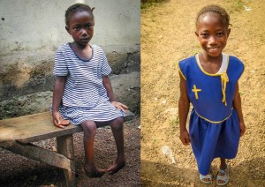 Mary before her surgery (left) on her feet and after her surgery (right)