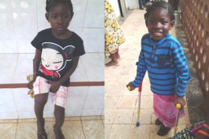 Mariatu with a painful infection in the bone right above her right knee before (left) and after her surgery (right)