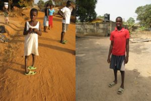 Abu Bakar with two clubfeet (left) en after two years of medical help (right)
