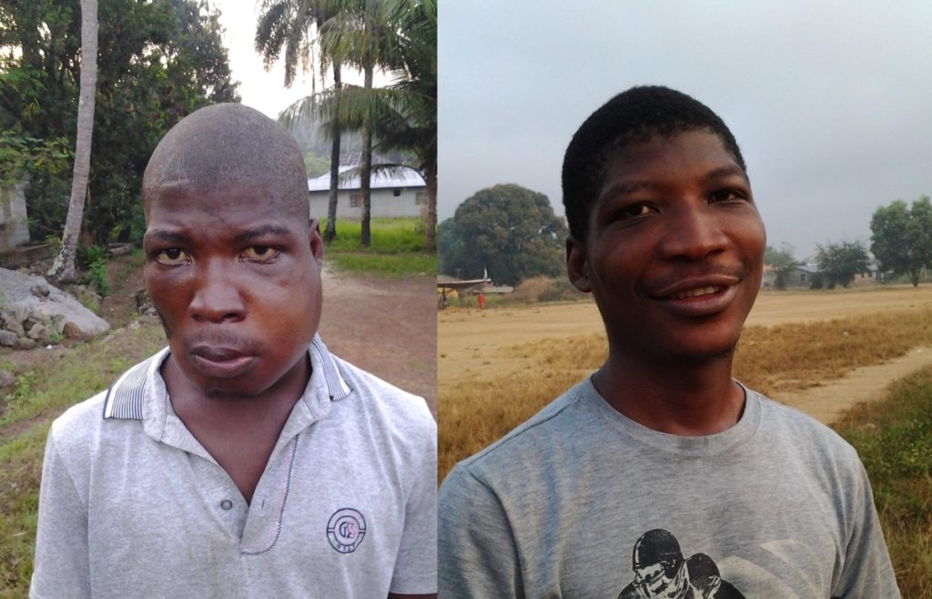 Amadu before his surgery (left) and after